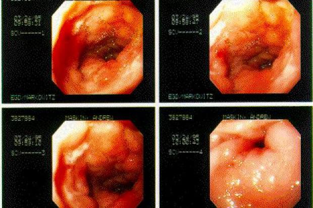 Opole: NFZ kwestionuje sposób rozliczania endoskopii...