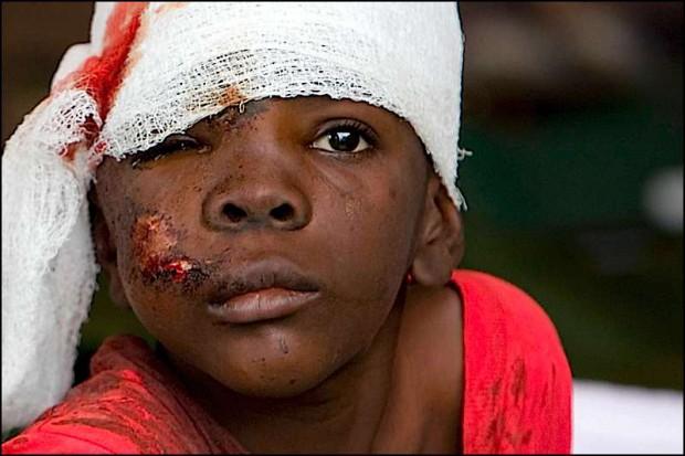 Haiti: Polacy na miejscu, lekarze nigdy nie widzieli tylu obrażeń