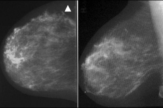 Twardowski: dostęp do mammografii nie jest ograniczany