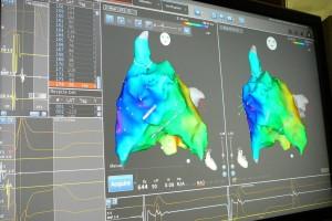 Kardiologia: coraz lepsze leczenie dzięki nowym technologiom medycznym