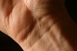 Wejherowo: udana replantacja nadgarstka