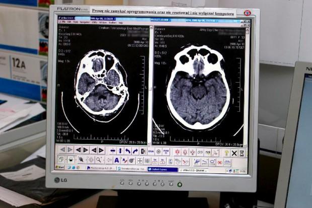 Będzie nowy sposób diagnozowania choroby Parkinsona?