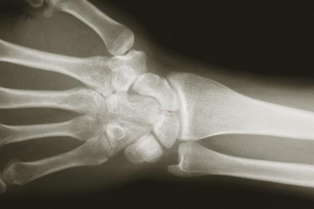 Opole: nowy rentgen pracuje