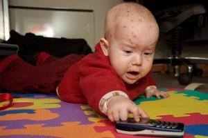 Radom: zwiększona liczba przypadków ospy wietrznej