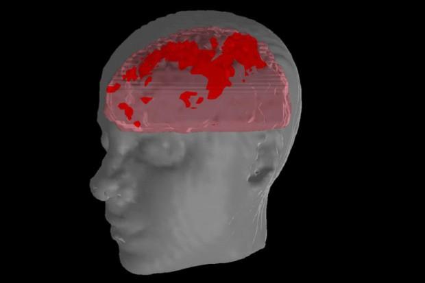 Nadchodzi Światowy Tydzień Mózgu...
