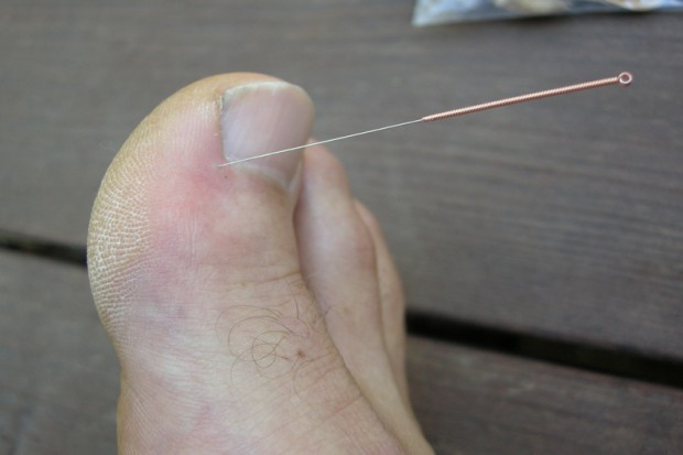 Mikrobiolodzy: akupunktura grozi zakażeniami