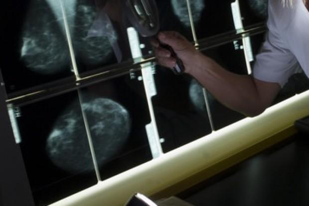 Dolnośląskie: kontrole po błędnej mammografii