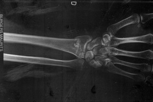 Rzęski komórek kości pomogą pokonać osteoporozę?