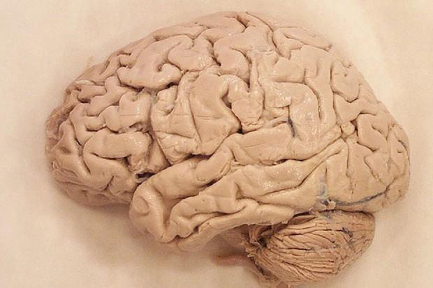 Gen otyłości zwiększa ryzyko ubytku tkanki mózgowej
