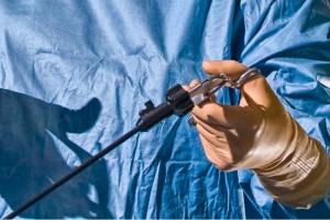 Laparoskopia, złoty standard