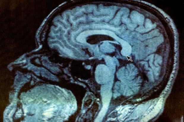 Leki antydepresyjne skuteczne w leczeniu udaru?