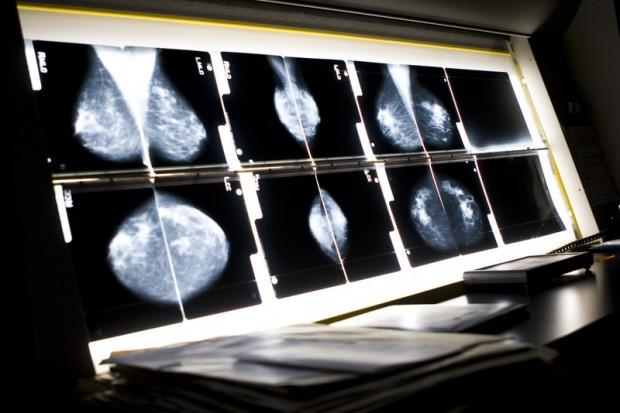 Mammografia mało skuteczna u młodych kobiet