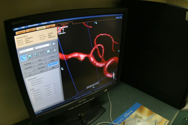 Studencki portal edukacyjny o udarze mózgu