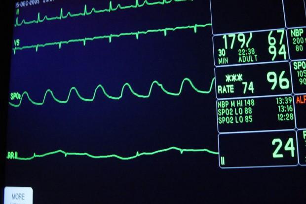 Chełmno: rozbudują nadzór kardiologiczny