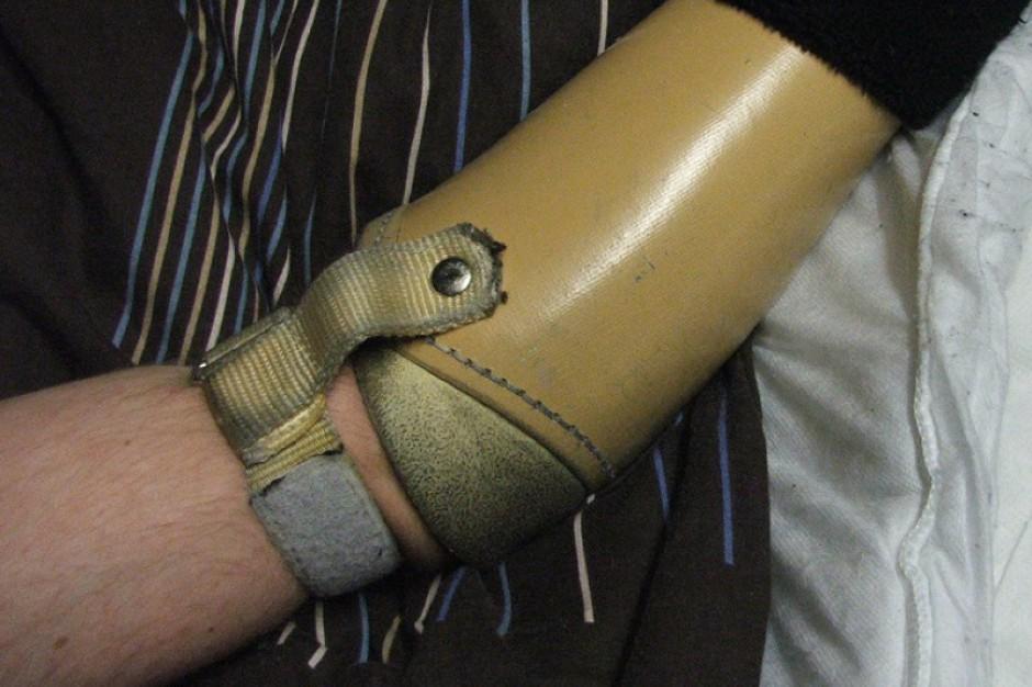 Niewiarygodnie Inteligentna proteza ręki - czuje dotyk - Badania i rozwój IP36