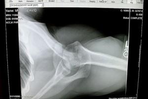 Żary: będą wszczepiać protezy stawu barkowego