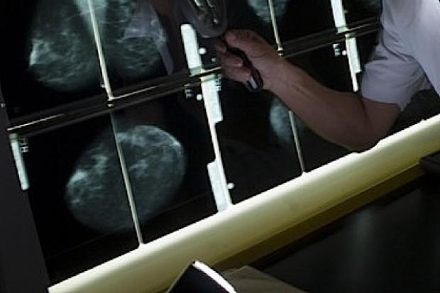 Kluczbork: jest lepiej z przesiewowymi badaniami mammograficznymi
