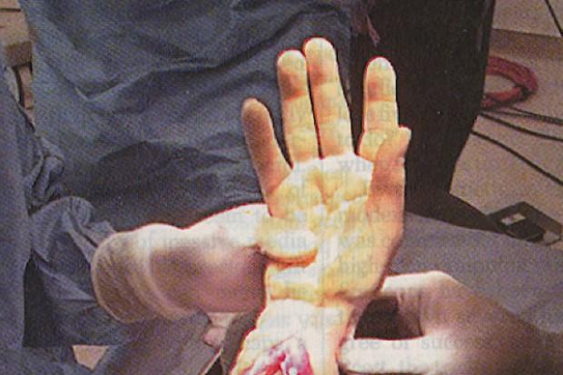 Dokonali tego! Mikrochirurdzy przeszczepili pacjentowi dwie ręce jednocześnie