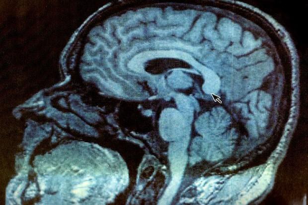 Osobowość zależy od kształtu mózgu?