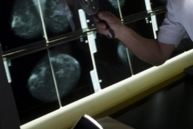 Brzesko: Stowarzyszenie Promocji Zdrowia kupiło mammograf