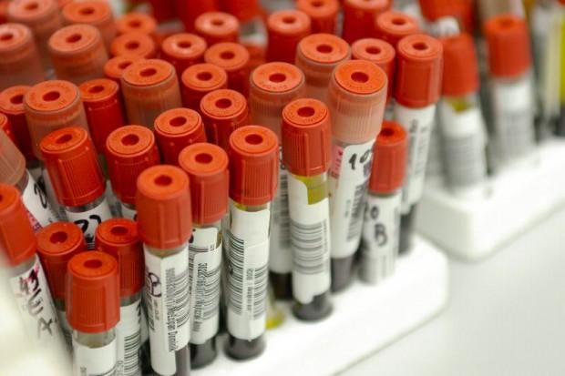 Przejęcia na rynku diagnostyki laboratoryjnej