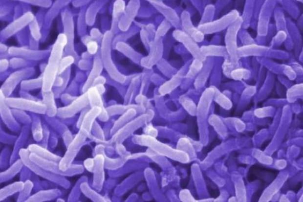 Nigeria: rośnie zagrożenie epidemią cholery