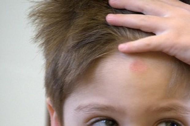 Lekki uraz głowy u dzieci - propozycja algorytmu postępowania klinicznego