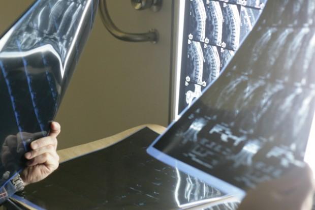 Sztuczna inteligencja zamiast radiologa?