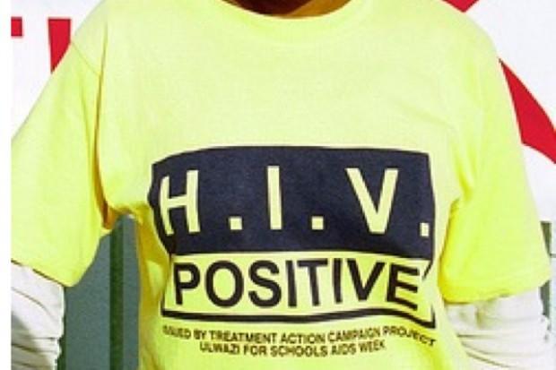 Wirus HIV wywołuje produkcję nietypowych przeciwciał