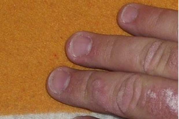 Łuszczyca: w ciągu kilku miesięcy ma ruszyć program terapeutyczny