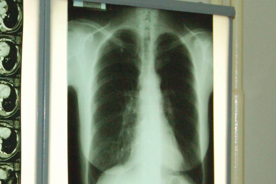 Receptory gorzkiego smaku w płucach
