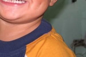 Otwock: zniknie ośrodek dla dzieci z rozszczepami wargi i podniebienia