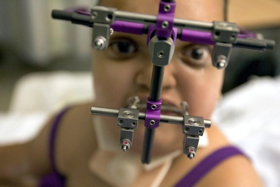 Nowa technika operacyjna w leczeniu deformacji twarzy