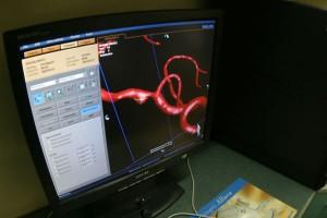 Szkocja: pacjent po udarze poddany terapii komórkami macierzystymi