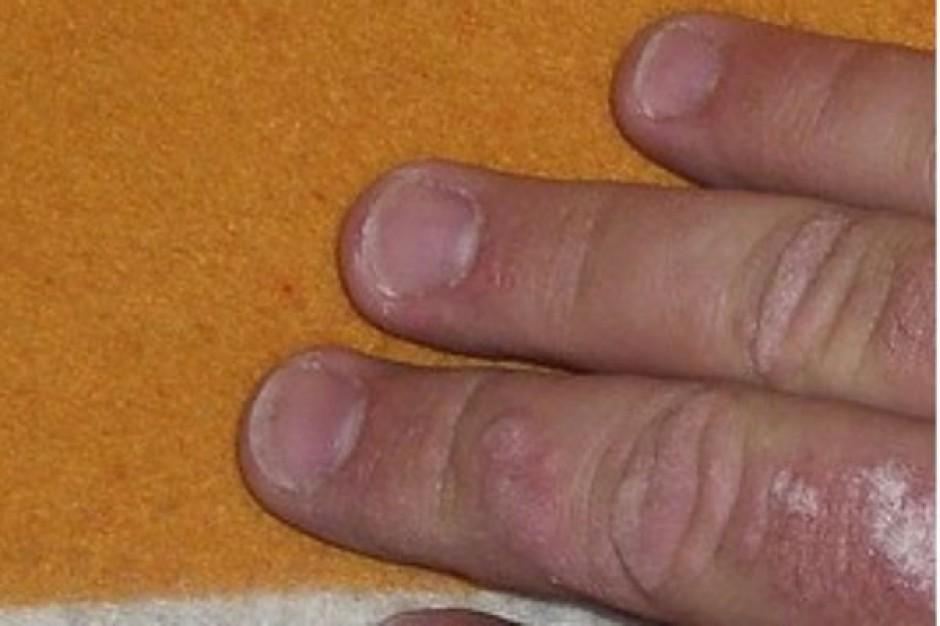 Dermatolodzy: wprowadźmy wreszcie leczenie biologiczne w łuszczycy