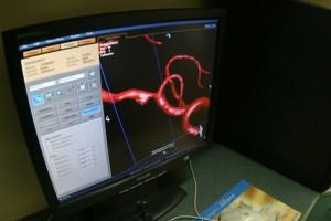 Opole: pacjent po ostrym udarze dzięki trombektomii odzyskał pełną sprawność