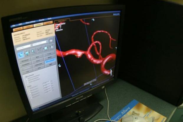 Szczecin: tu też mają cyfrowy angiograf