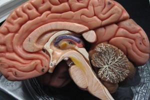 Następstwa udaru niedokrwiennego leczone antydepresantem