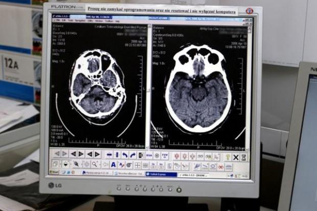 Białystok: szpital MSWiA ma tomograf komputerowy