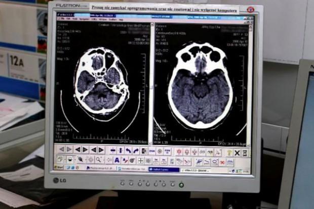 Elbląg: jest tomograf - pieniędzy na badania brak