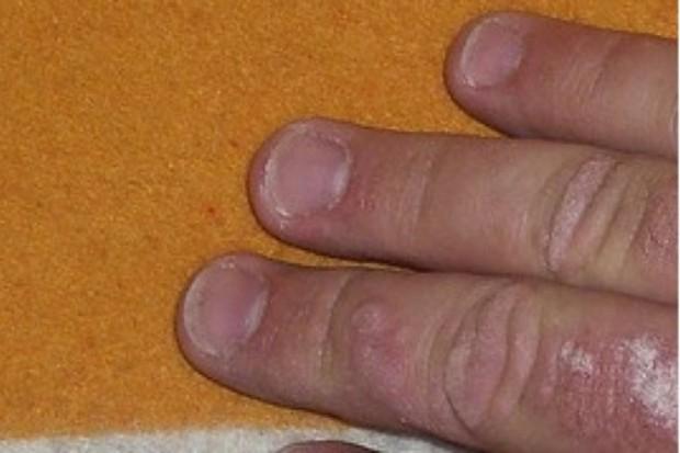 Łuszczyca plackowata: te zmiany zablokują program terapeutyczny?