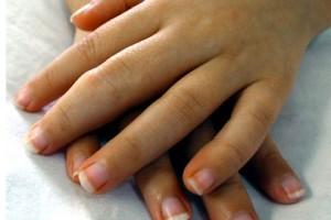 Program leczenia ŁZS i RZS przekazany do uzgodnień zewnętrznych