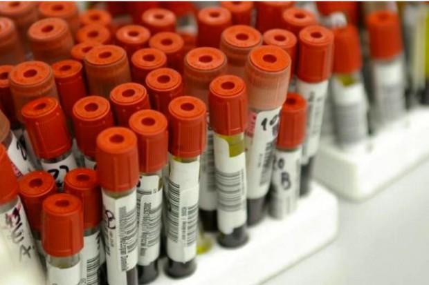 NFZ: szpital musi zapewnić komplet badań pacjentowi