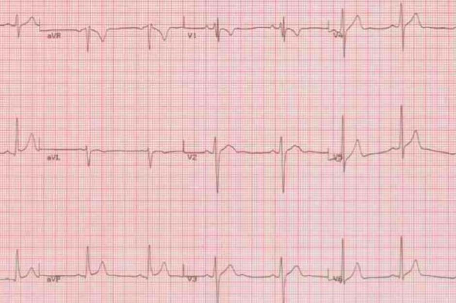 Puszczykowo: szpital chce kompleksowo leczyć chorych kardiologicznych