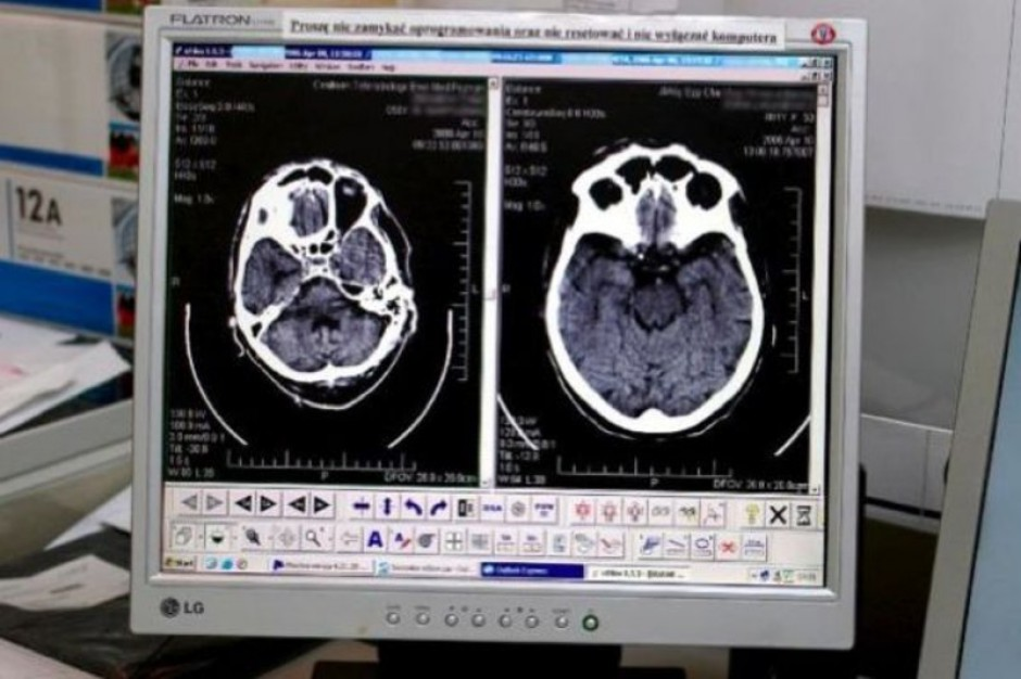 Blachownia: pacjenci szpitala mogą już korzystać z tomografu
