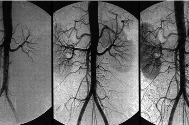 NFZ: nie będzie cięcia wyceny procedur w kardiologii inwazyjnej