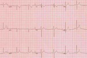 Chorzów: tylko jeden chętny na kupno oddziału kardiologii
