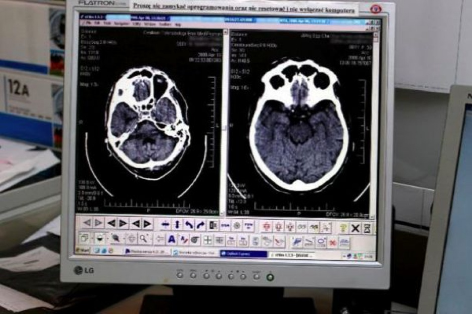 Rozszerzona rzeczywistość może się przydać w kardiologii