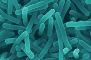 GIS ostrzega przed bakteriami w żółtym serze