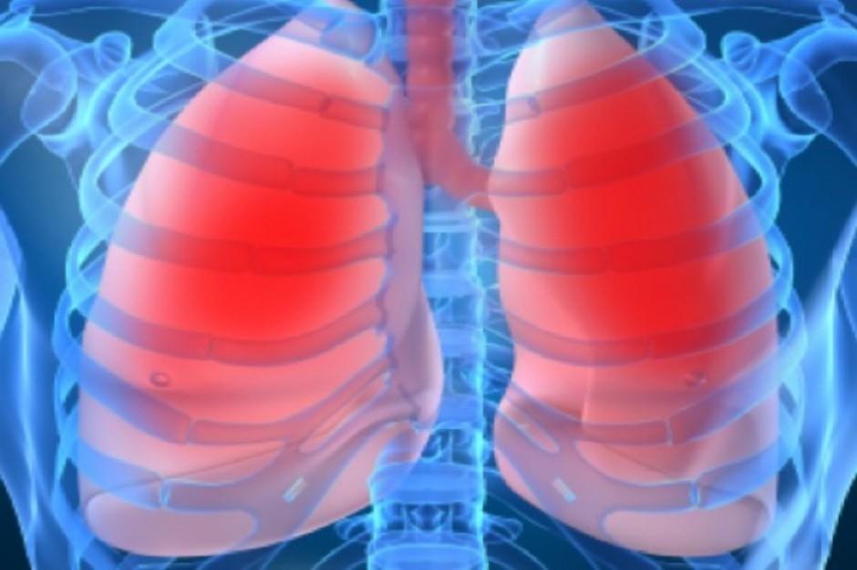 Cukrzyca przedłuża życie chorym na raka płuca?